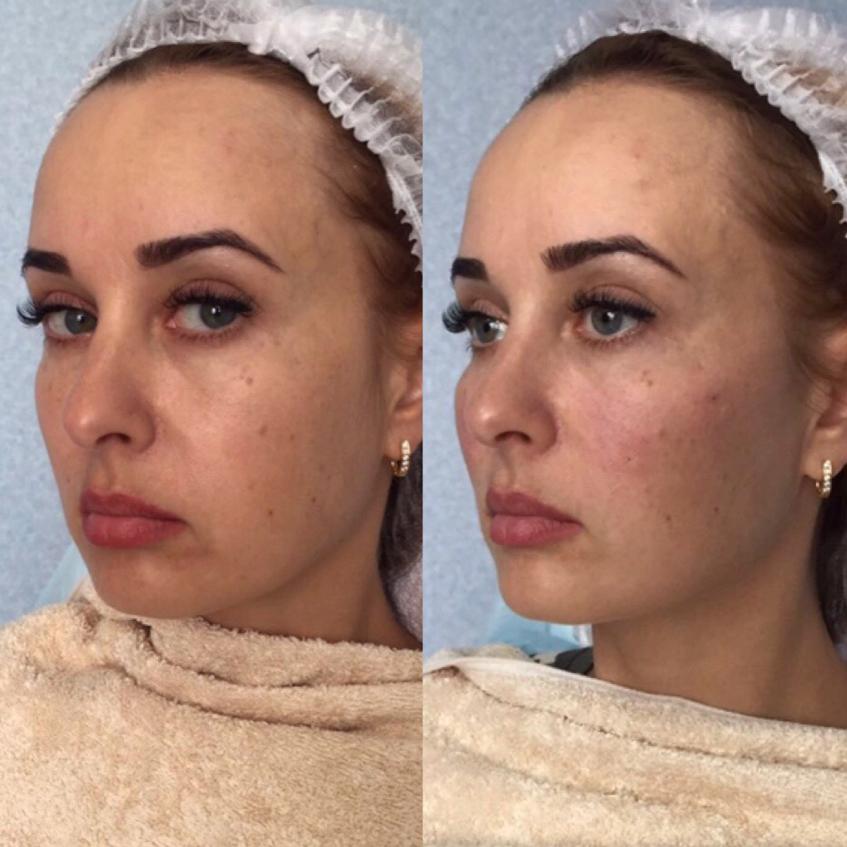 Увеличение скул филлерами фото до и после