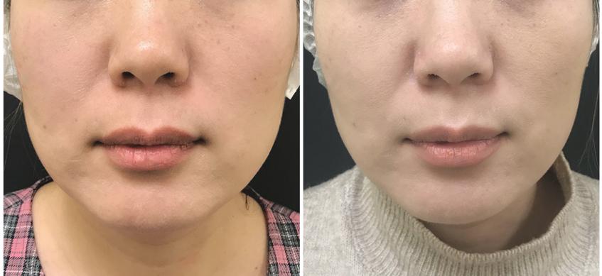 MesoSculpt процедура худое лицо