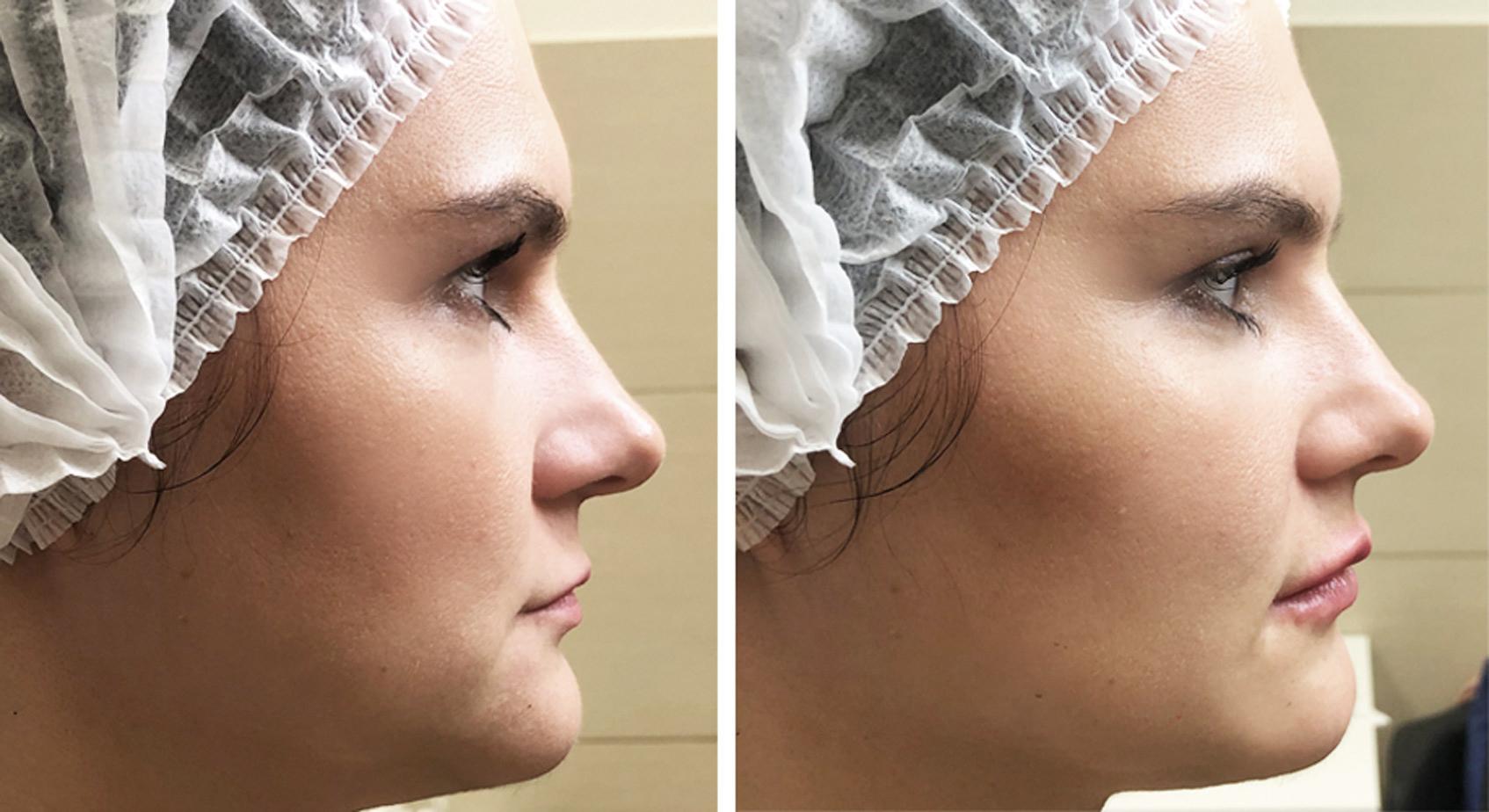 уход за губами после инъекций увеличения